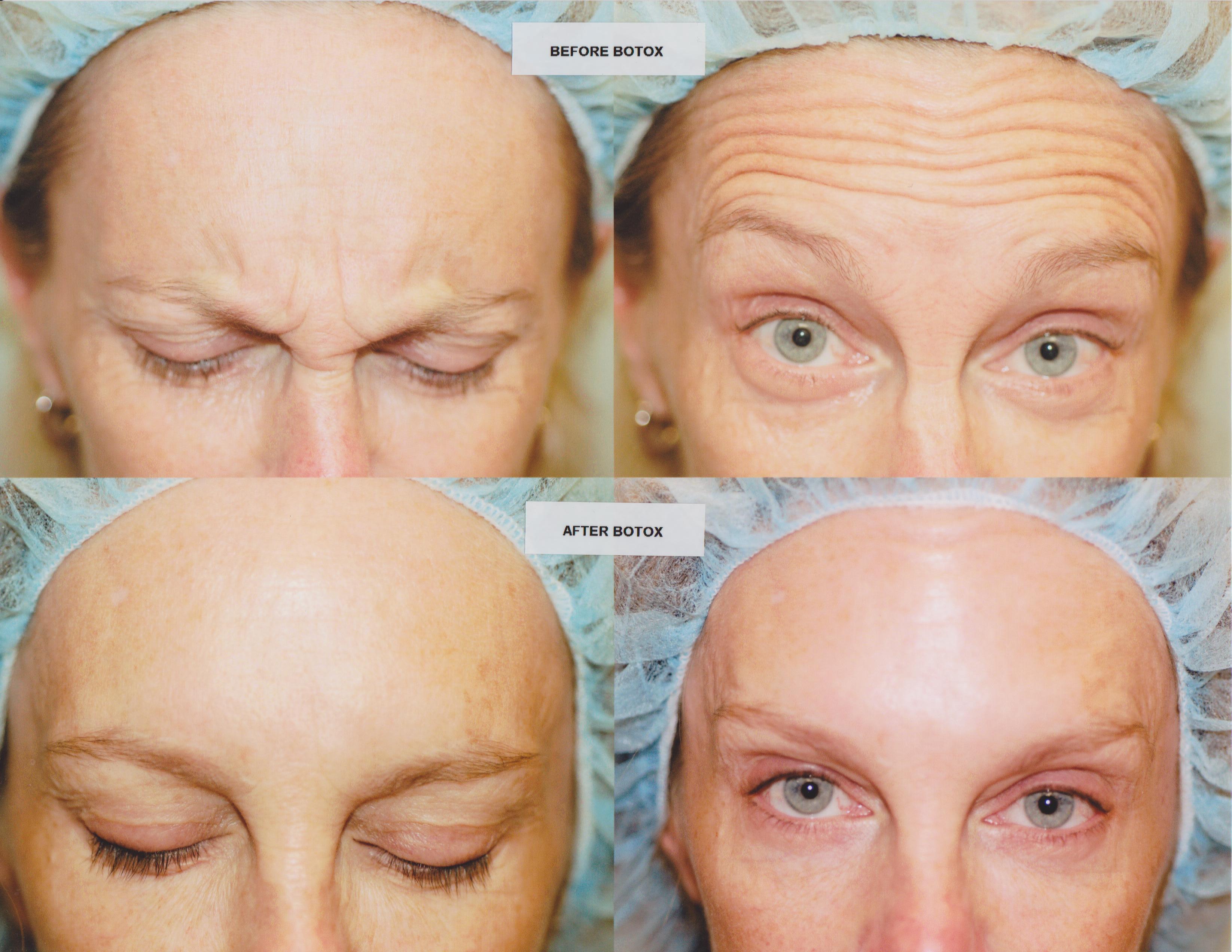 Botox Your Questions Answered Omahamedspas Blog